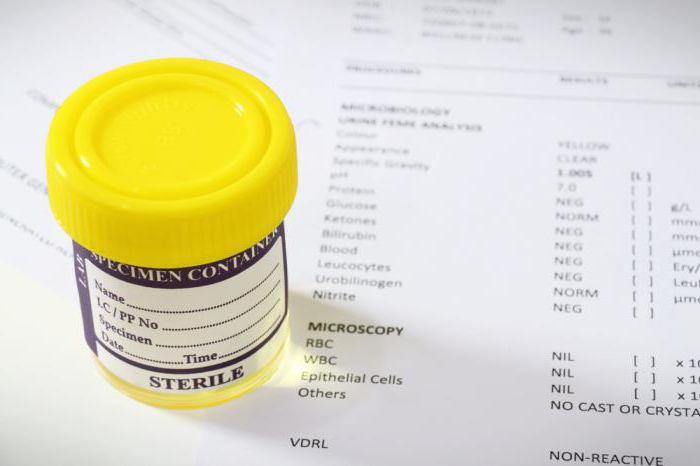 Суточный анализ мочи на белок 25