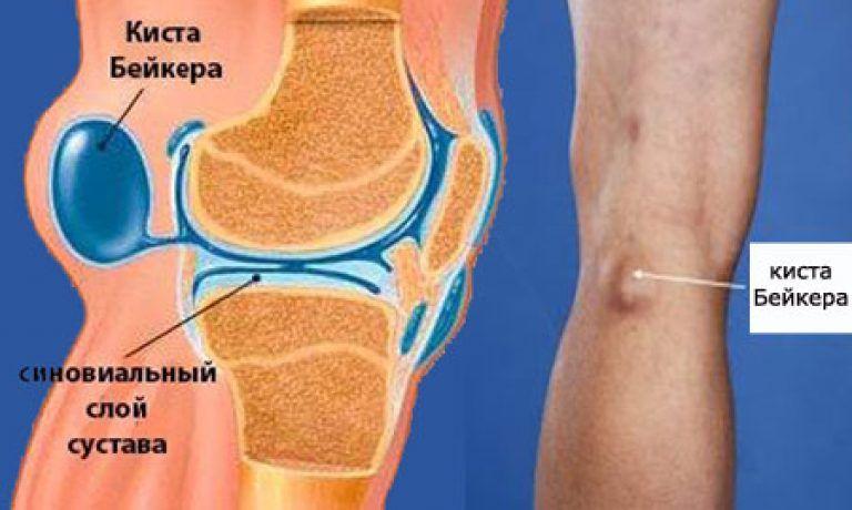 Была травма вен на голени она спровоцировала артрит кол сустава деформирующий артроз коленного сустава лечебная физкультура