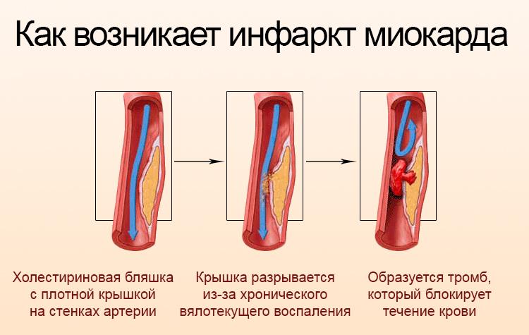 Возникновение инфаркта