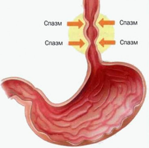 Спазм пищевода