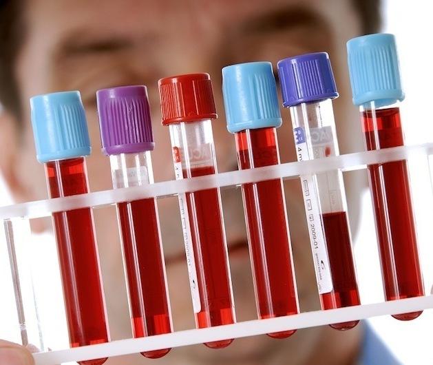 Что такое гликированный гемоглобин, его норма и отклонения
