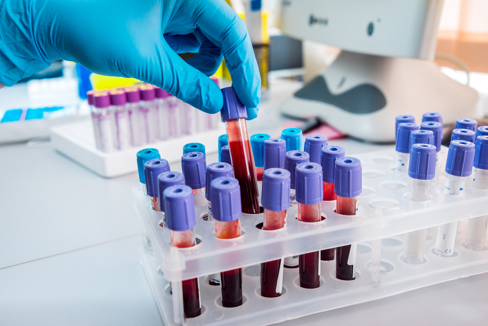 Анализ крови на кальций - что это такое? Расшифровка показателей, норма и отклонения
