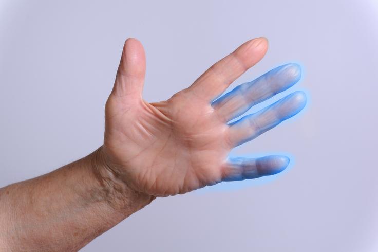 ночью немеют пальцы рук причины и лечение