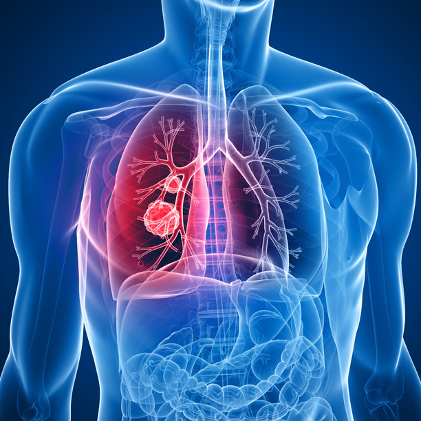 таксаны химиотерапия переносимость побочные