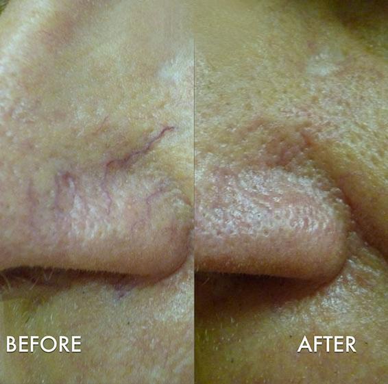 blood vessel removal laser reviews