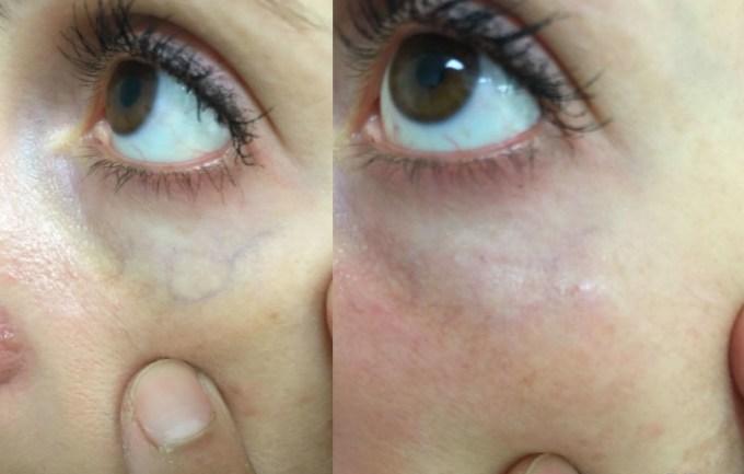 facial vascular removal reviews