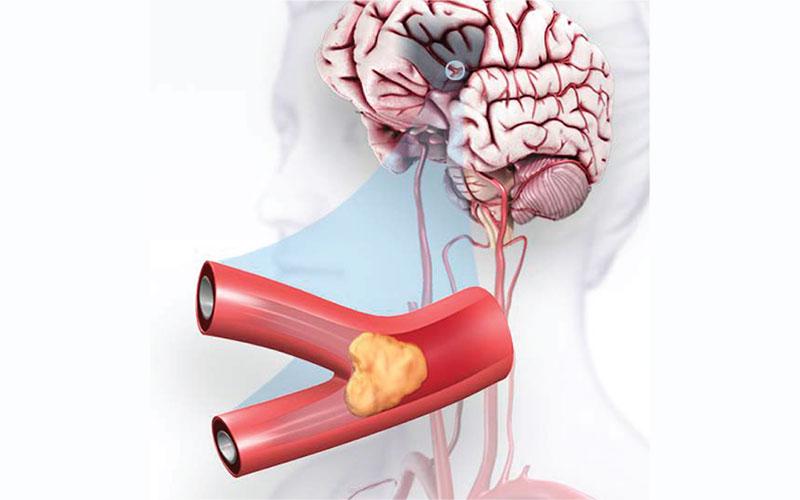последствия инсульта головного мозга у женщины