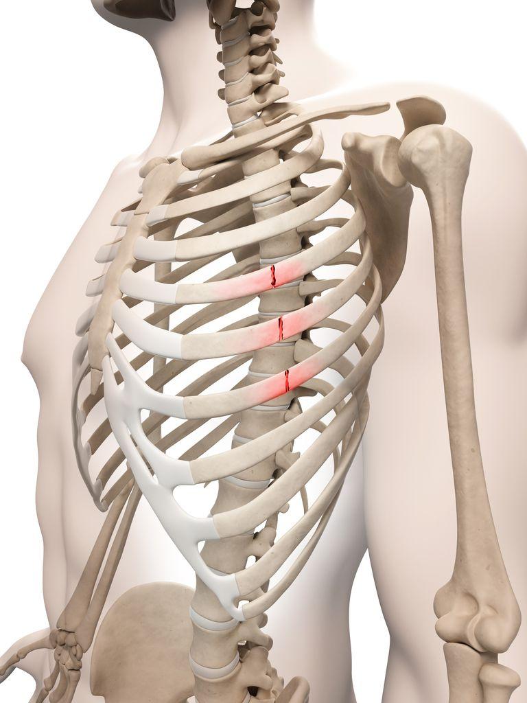 Что делать, когда сломаны ребра: как лечить в домашних условиях