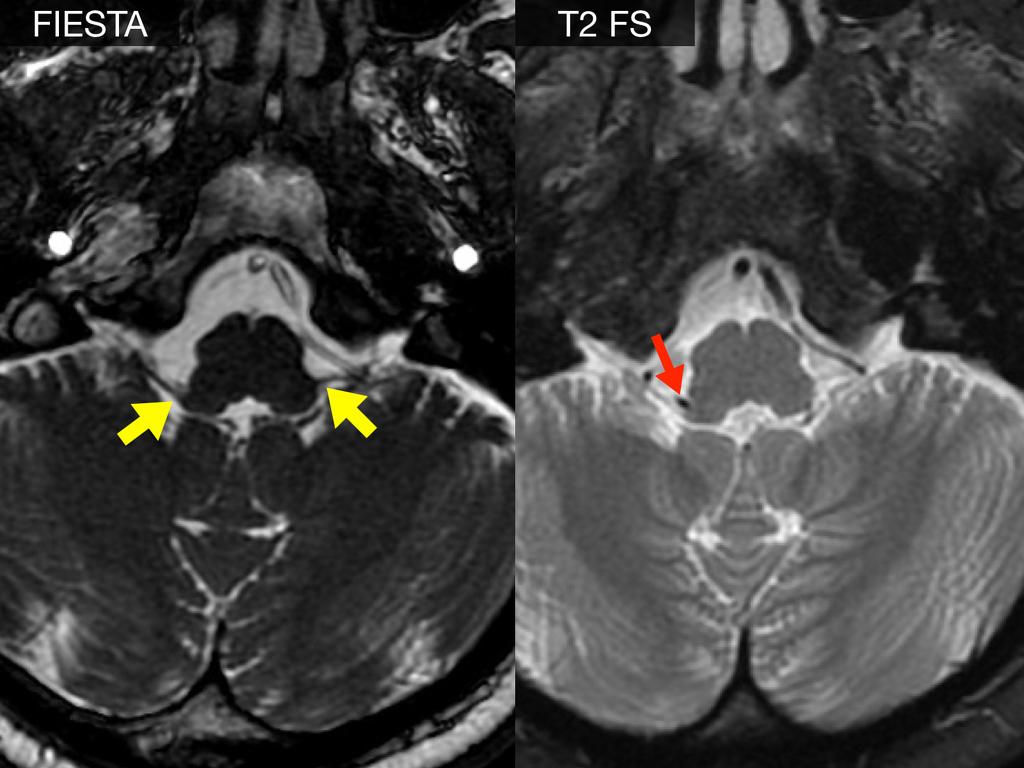 воспаления языкоглоточного нерва лечение