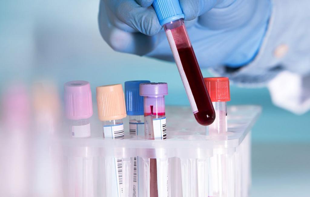 Какой анализ покажет онкологию? Признаки онкологии по анализу крови