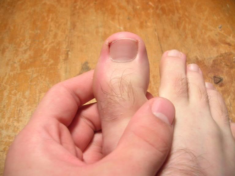 Вросший ноготь ул усиевича