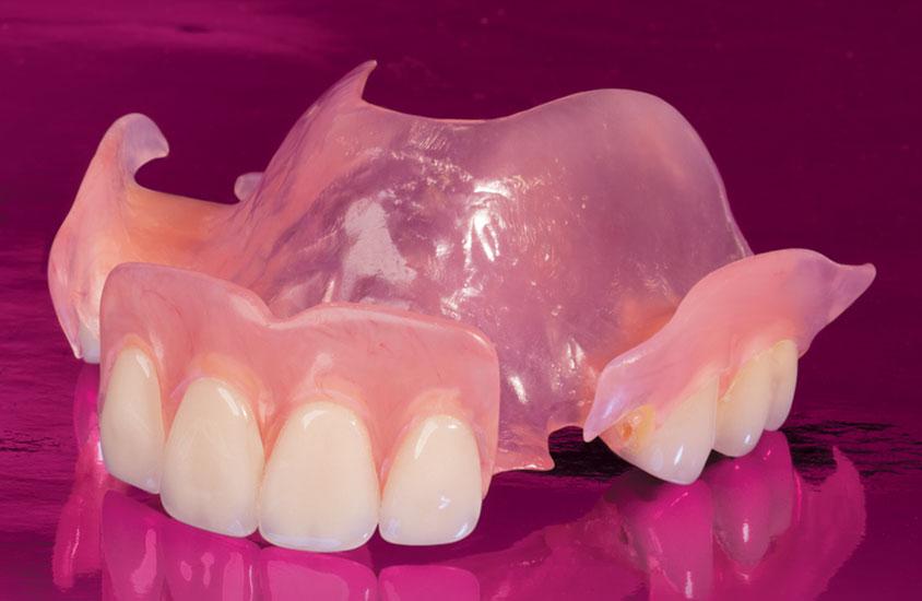 Цена на нейлоновые съемные зубные протезы
