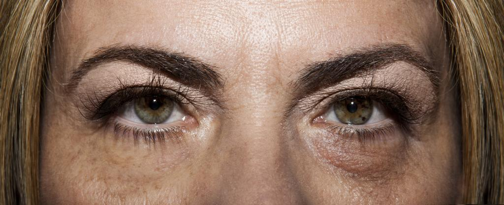 Advise a good remedy for bags under the eyes
