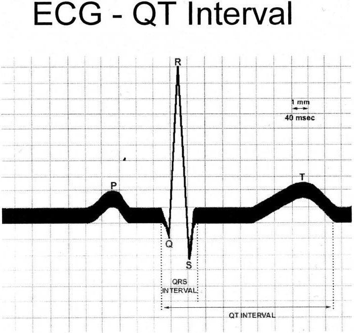 синдром удлиненного интервала qt лечение