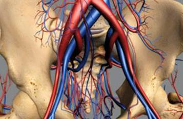 подвздошная артерия операция