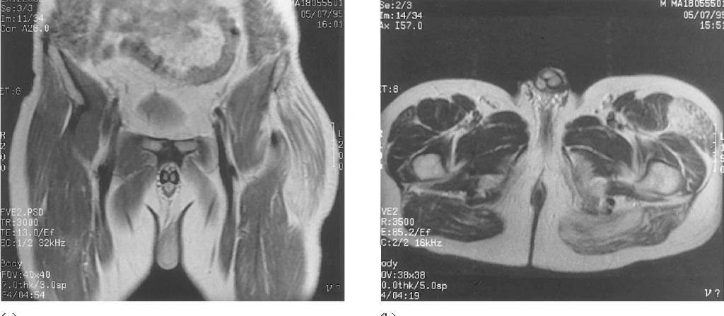 Липоматоз - это что такое? Описание заболевания, диагностика и лечение