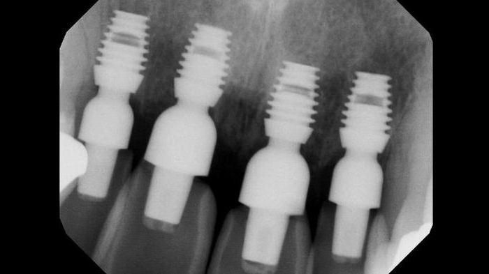 новейшие технологии в стоматологии