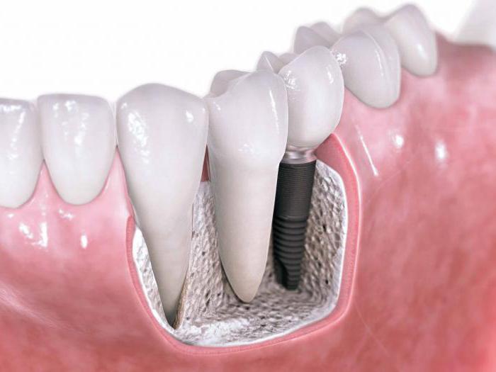 новые технологии в терапевтической стоматологии