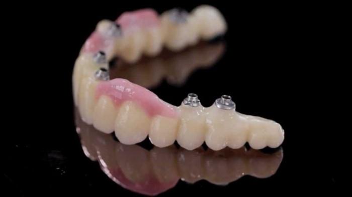 технологии в стоматологии коронки