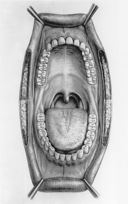 челюстно подъязычная мышца болит