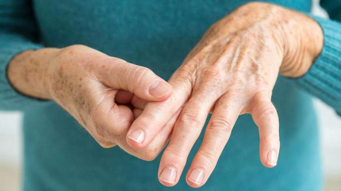 Хламидийный артрит: симптомы, причины, виды и лечение