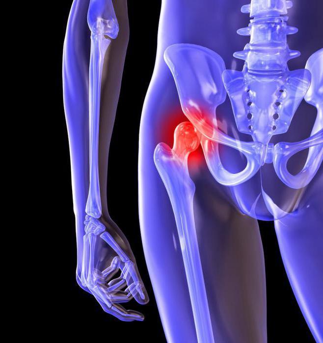 Коксартроз тазобедренных суставов лечение в домашних условиях