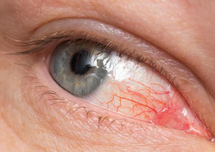 Токсоплазмоз у взрослых: симптомы и лечение, фото