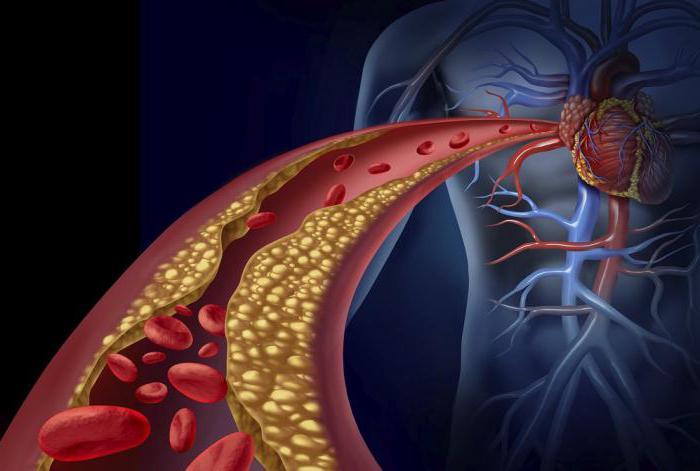 диета при атеросклерозе сосудов