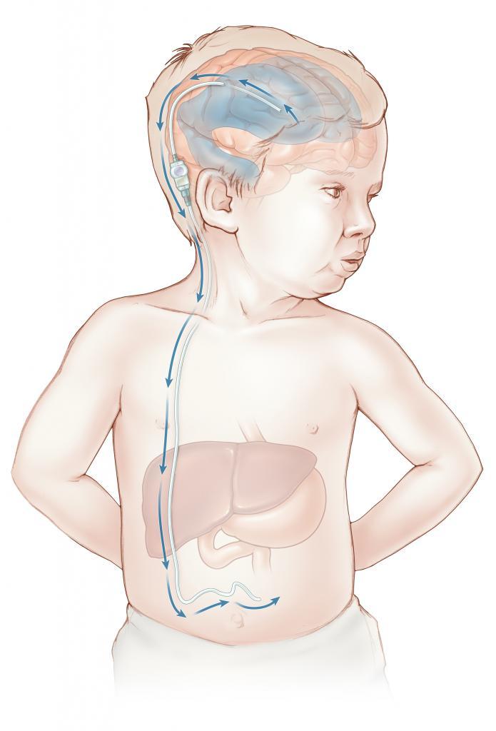 смешанная гидроцефалия у детей