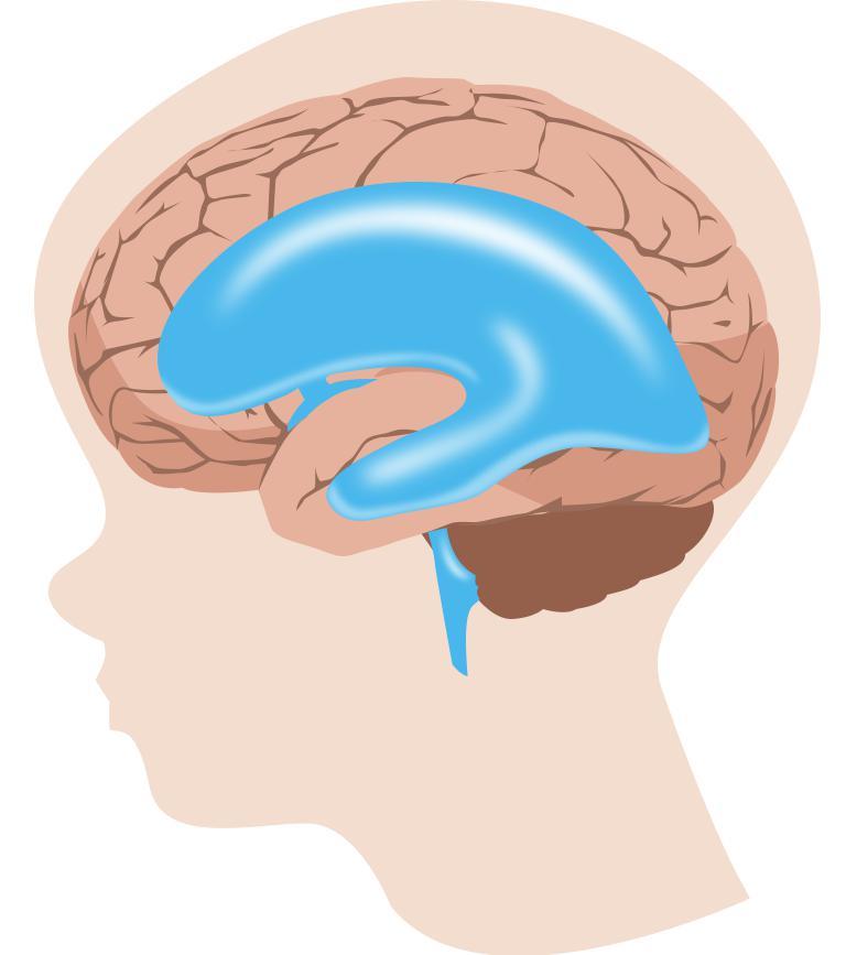 гидроцефалия головного мозга у детей последствия