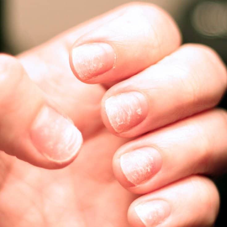 как выглядят здоровые ногти на руках фото лучше брать собственного