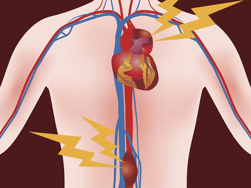 аневризма аорты причины