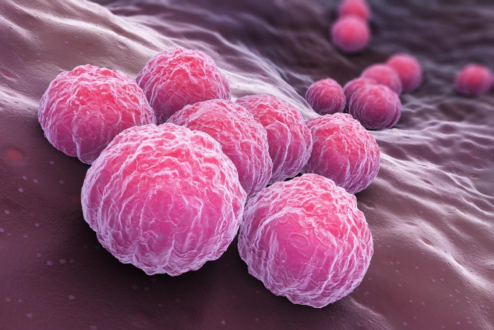 хламидия пневмонии igg положительный у ребенка