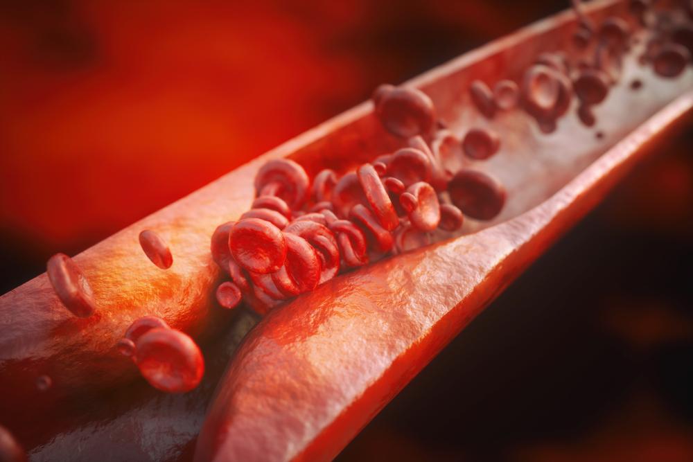 как лечить атеросклероз сосудов нижних конечностей