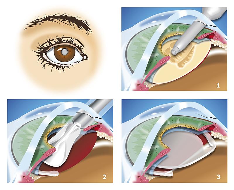 Операция катаракты картинки