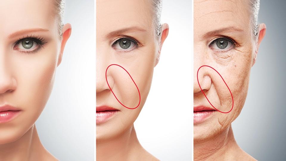 Как убрать носогубные складки гиалуроновой кислотой?