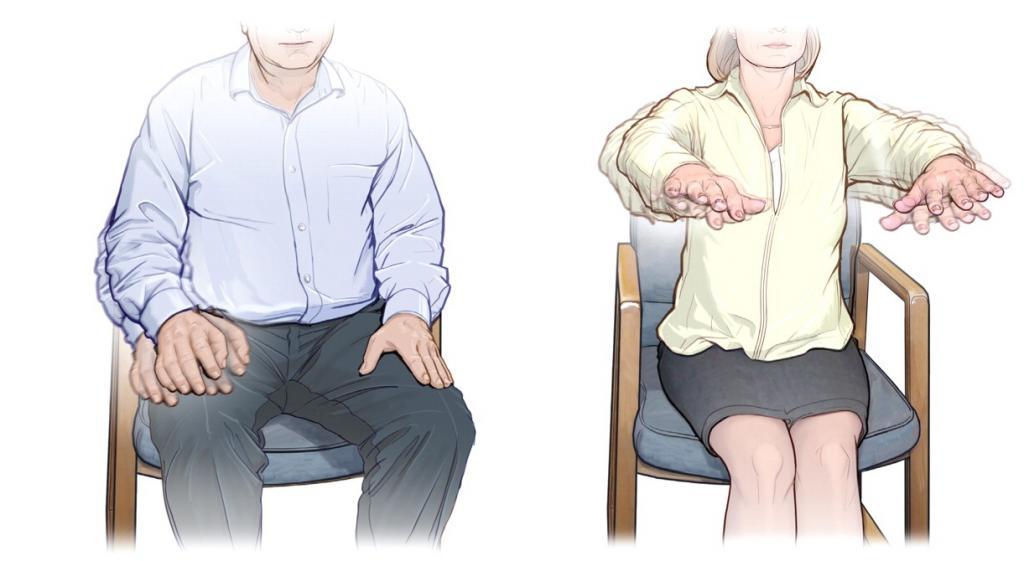 тремор рук причины лечение