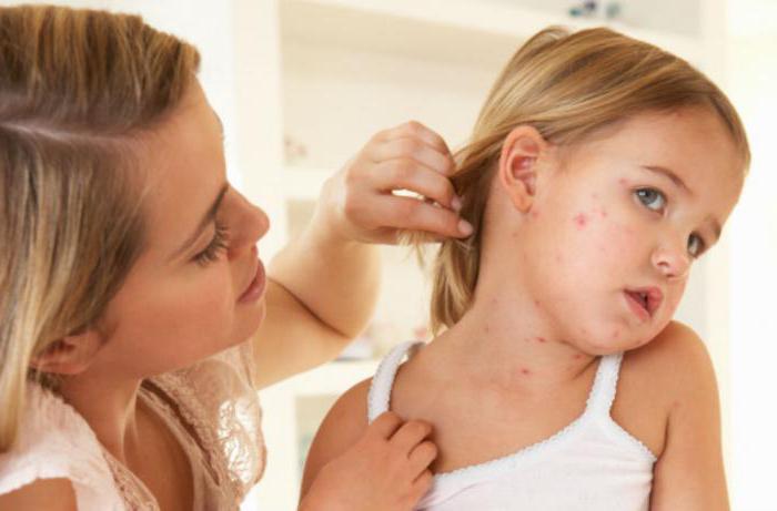 Дерматит кожи — скажите раздражению нет
