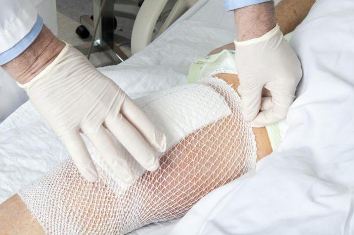 Медицинская желчь для суставов