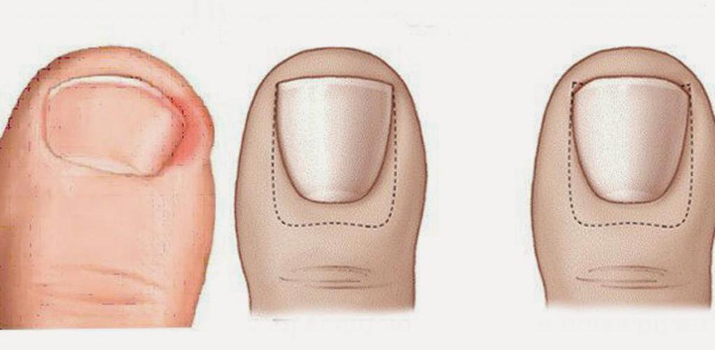 Педикюр при вросшем ногте. Педикюрный набор. Медицинский аппаратный педикюр