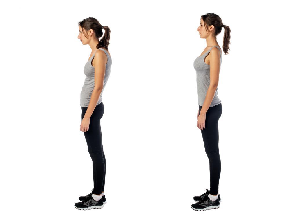 flat posture