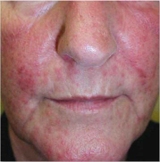 крем от аллергии акридерм