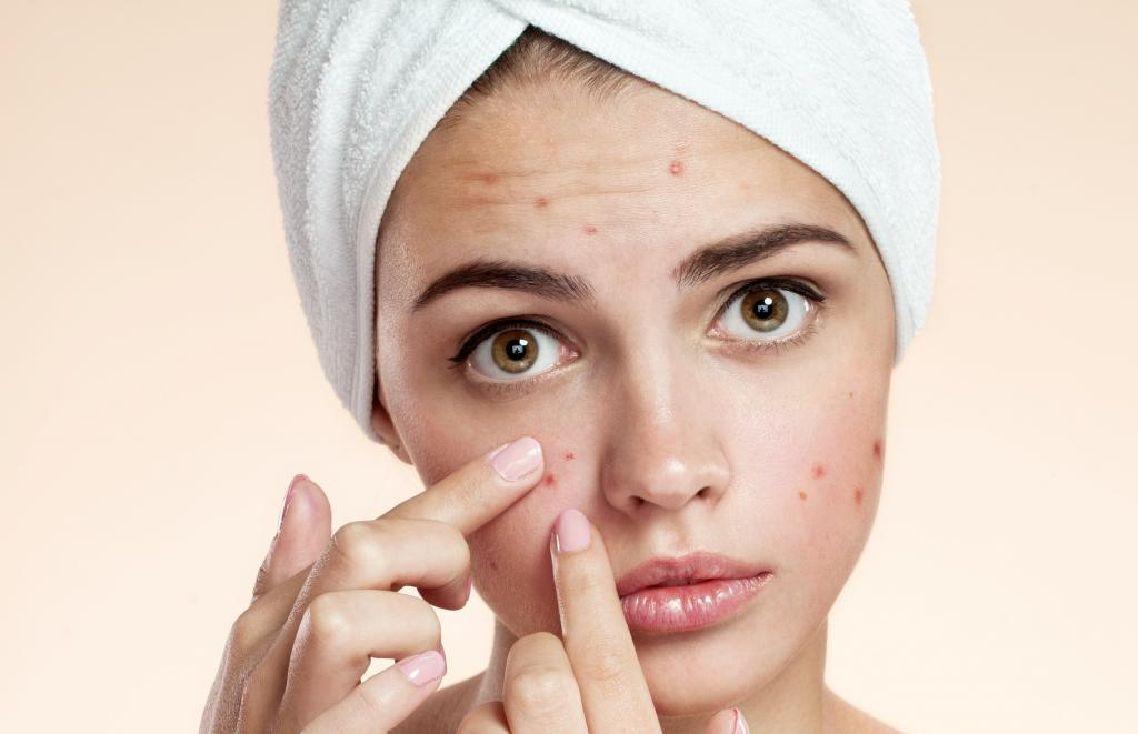 Acne disease