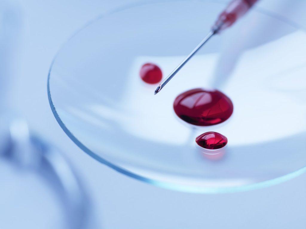 кровь анализ