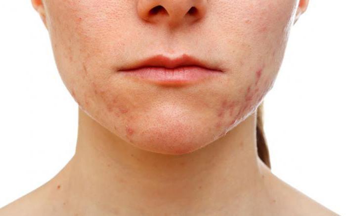 """Гель """"Регецин"""" от морщин: отзывы косметологов, особенности применения и эффективность"""