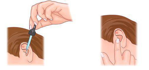 отит наружного уха симптомы и лечение у взрослых