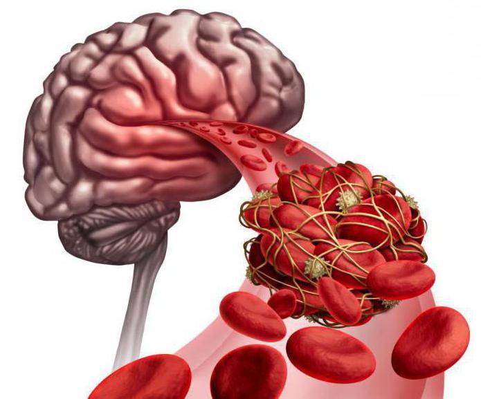 Височный артериит симптомы и лечение народными средствами