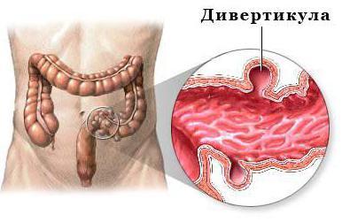 дивертикулез кишечника лечение диета