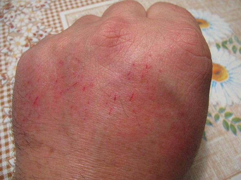 Лечение цыпок на руках в домашних условиях  170