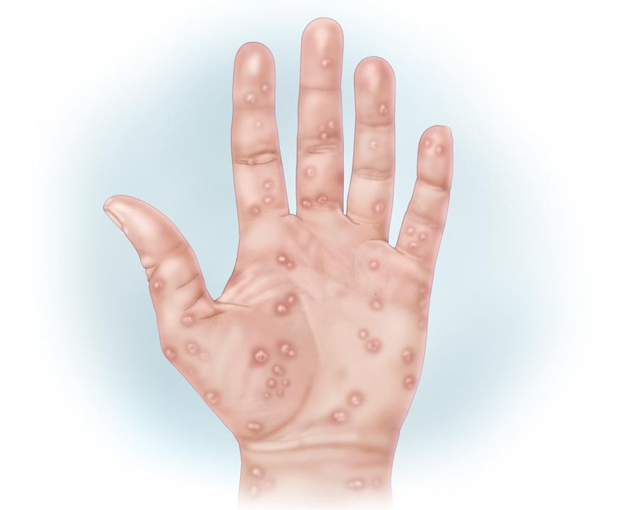 сифилис сыпь на руке